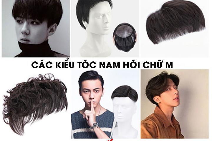 5 lý do nam giới nên chọn sử dụng tóc giả khi bị hói chữ M