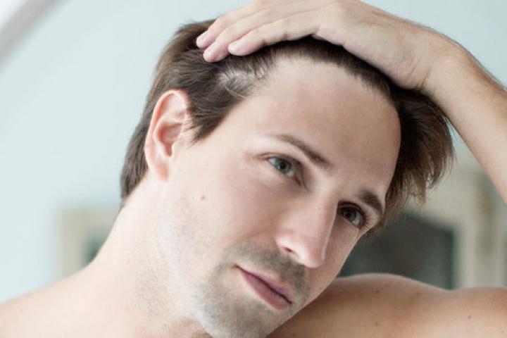 Chia sẻ mẹo: Gội đầu bằng gì để chống rụng tóc?