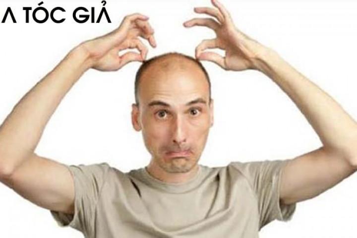 Hiện tượng rụng tóc nhiều và các bệnh lý gây rụng tóc