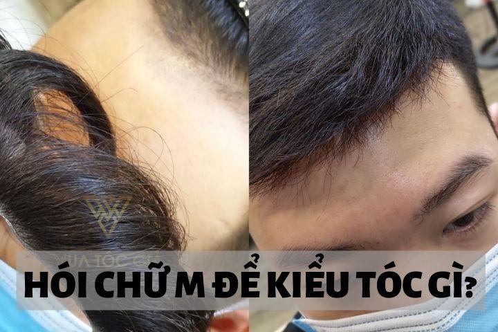 Trán chữ M nam nên để tóc gì? 9 kiểu tóc nam cho người hói chữ M đẹp nhất