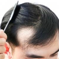 Tóc rụng nhiều: Nguyên nhân và giải pháp cho nam giới hói chữ M