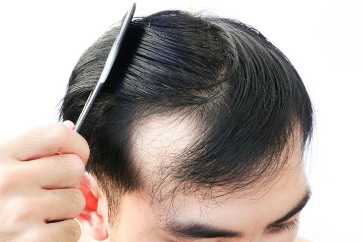 Hói đầu sớm ở nam giới có phải là bệnh? Nguyên nhân và cách khắc phục nhanh nhất