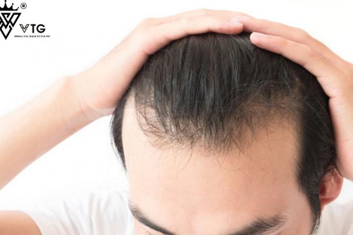 Nguyên nhân rụng tóc nam ở tuổi 20 và cách khắc phục nhanh nhất cho người trẻ