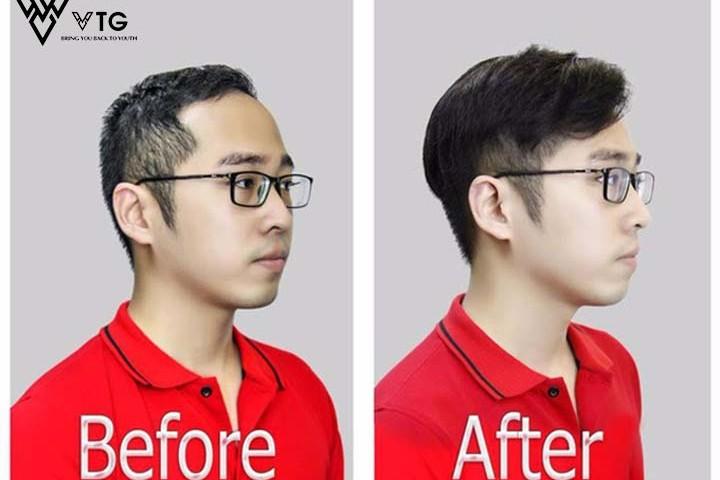 Tóc giả nam bằng tóc thật - Giúp bạn thay đổi ngoại hình trẻ hơn 10 tuổi