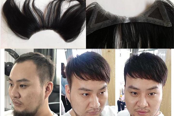 3kiểu tóc dành cho người hói chữ M đẹp và đơn giản nhất