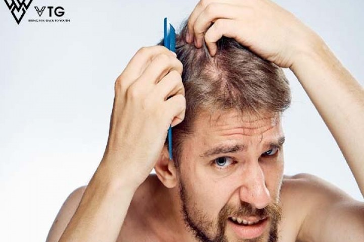 Làm thế nào để giảm rụng tóc ở nam giới?