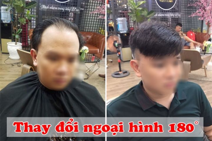 Địa chỉ mua tóc giả nam bằng tóc thật uy tín nhất Hà Nội