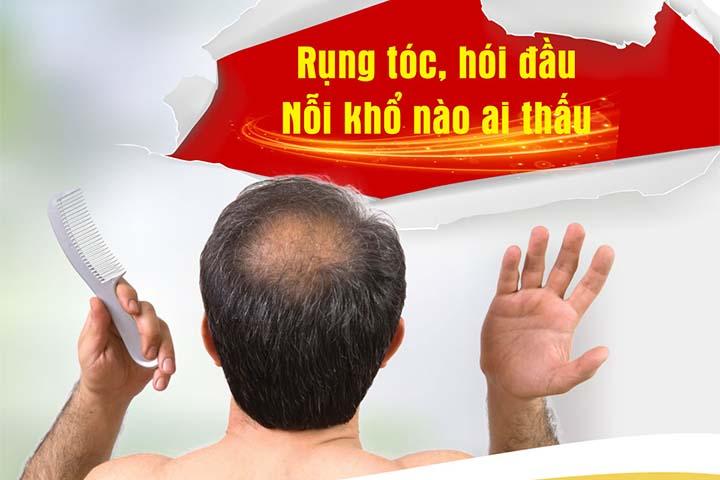 Rụng tóc ở nam giới tuổi 30: Nguyên nhân và giải pháp giúp bạn quay về thanh xuân
