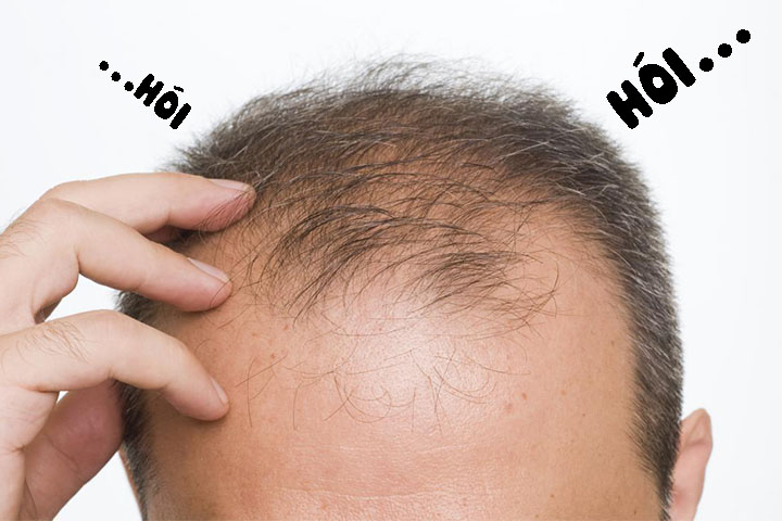 Rụng tóc ở nam giới, nguyên nhân và giải pháp
