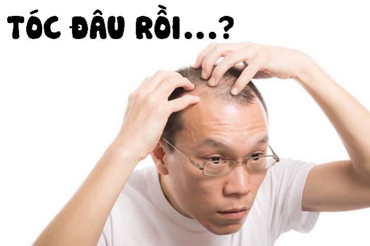 Nguyên nhân gây rụng tóc:  6 mẹo đơn giản để giúp tóc bạn mọc nhanh hơn
