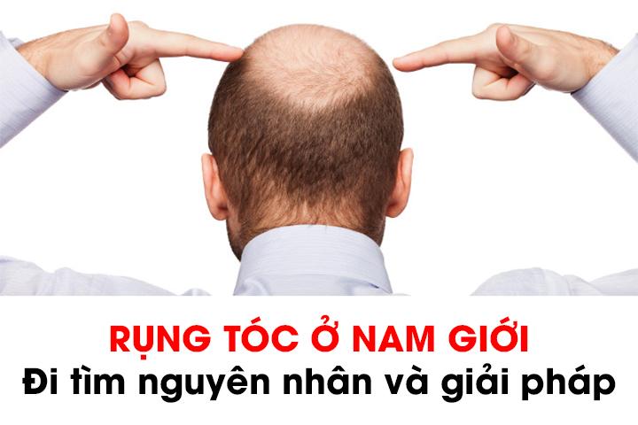 Điều trị hói đầu ở nam giới: Bạn đã thử những cách nào?