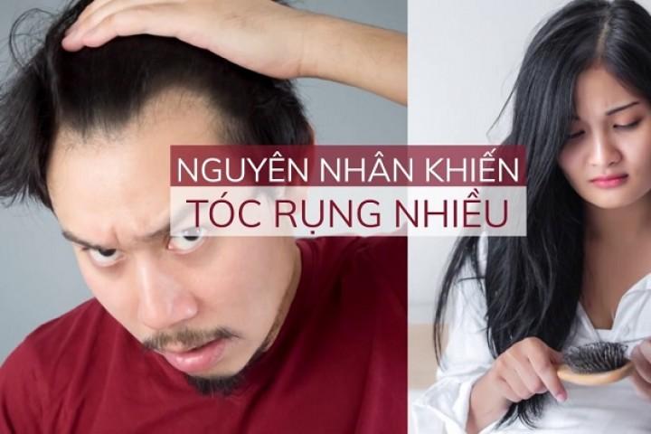 Nguyên nhân rụng tóc nhiều và cách khắc phục