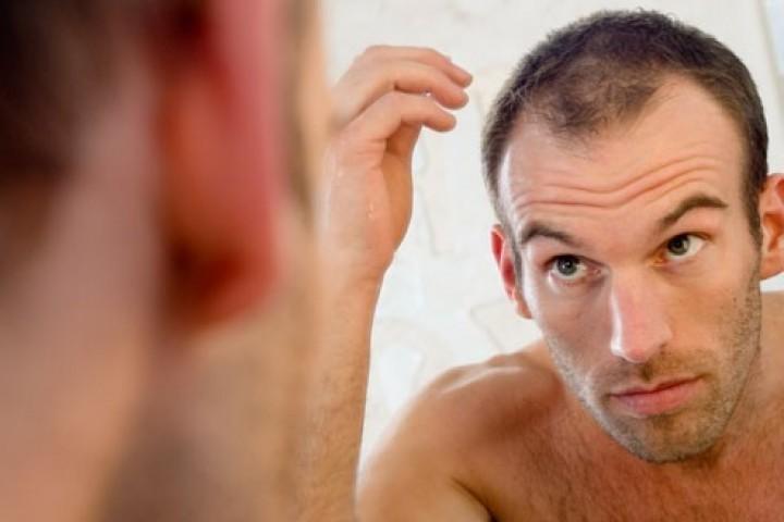 Cách mọc tóc nhanh cho người hói trán chữ M