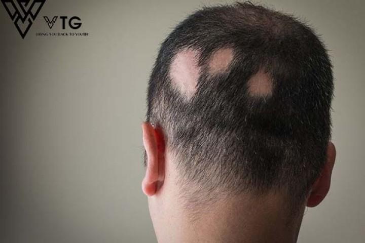 Rụng tóc có phải là bệnh không?