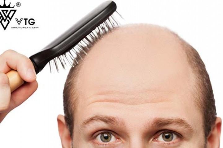 Rụng tóc di truyền có chữa được không?