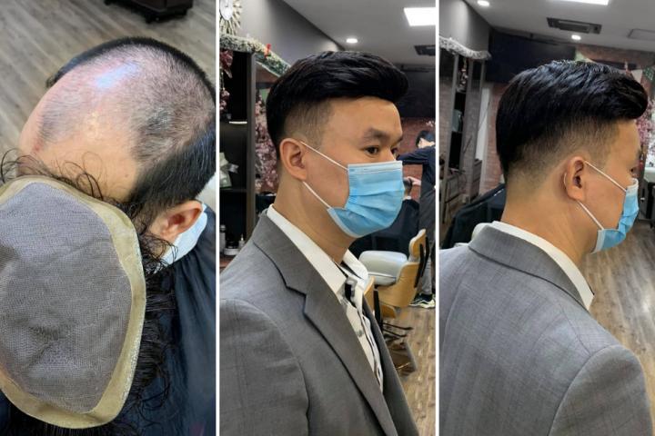 Nguyên nhân gây rụng tóc và cách chữa trị hiệu quả nhất