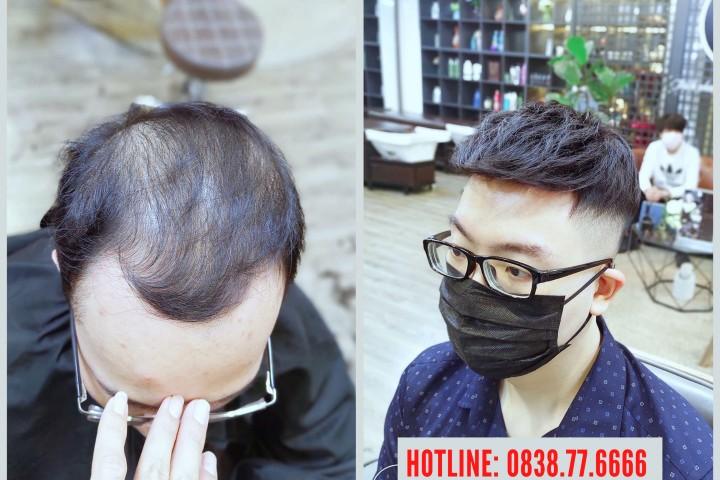Tóc giả nam Hà Nội - Đâu là địa chỉ giúp bạn có bộ tóc thật cao cấp nhất?