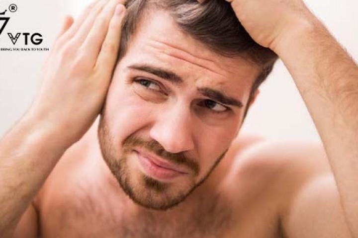 Rụng tóc nam ở độ tuổi 20 và 30 - Tóc mỏng có bình thường không?