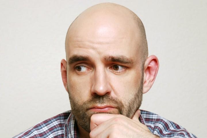 Nguyên nhân, dấu hiệu và cách điều trị hói đầu ở nam giới