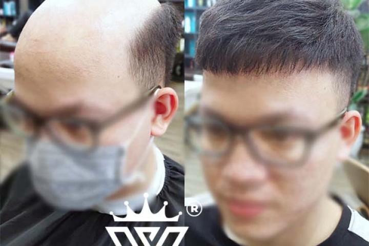 Mua tóc giả nam ở đâu? Địa chỉ mua tóc giả nam 100% tóc thật uy tín Hà Nội