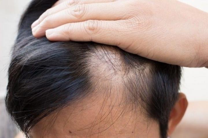 Vua Tóc Giả - Thương hiệu tóc giả nam Việt Nam uy tín, chất lượng