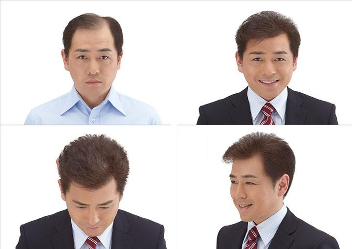 5-ly-do-nam-gioi-nen-chon-su-dung-toc-gia-khi-bi-hoi-chu-m-1