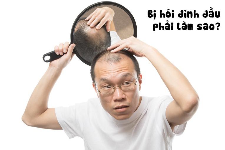rung-toc-nam-gioi-nhung-nhan-thuc-sai-lam-ve-cach-dieu-tri-va-thuoc-moc-toc-nhanh-2