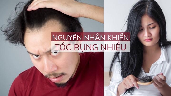 nguyen-nhan-rung-toc-nhieu-rung-toc-nam-1