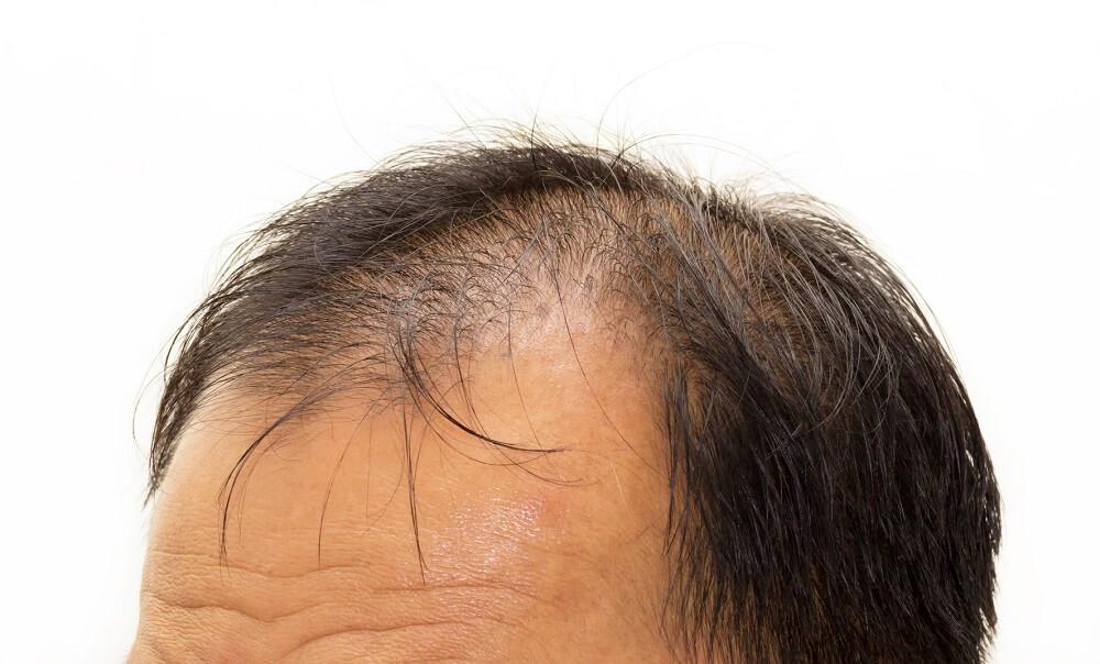 tóc rụng nhiều